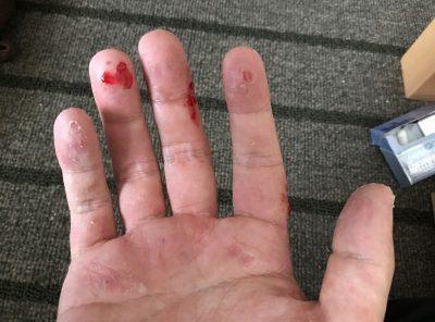 汗疱は指の側面、指の腹、手のひらどこでも出ます