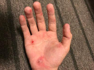 汗疱にビオチン治療2ヶ月目