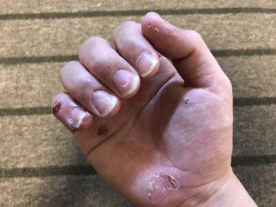 汗疱でビオチン治療3か月目