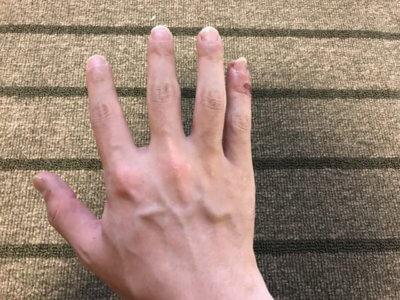 汗疱ビオチン3ヵ月手の甲