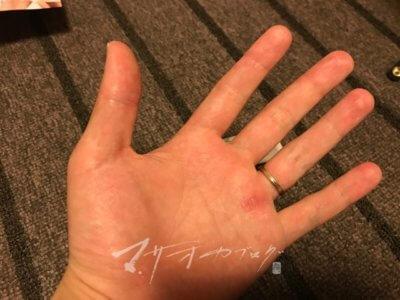手汗予防にテサランを使う